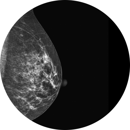 Sacramento Breast Imaging